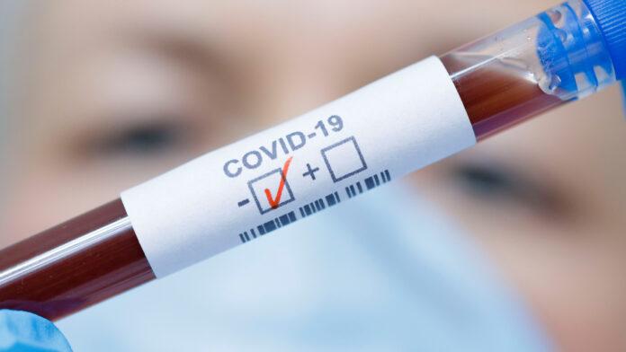 Casos de Covid-19 e óbitos continuam subindo no Litoral Norte