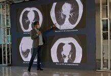 Aguilar Júnior mostra imagens de tomografia e evolução do coronavírus